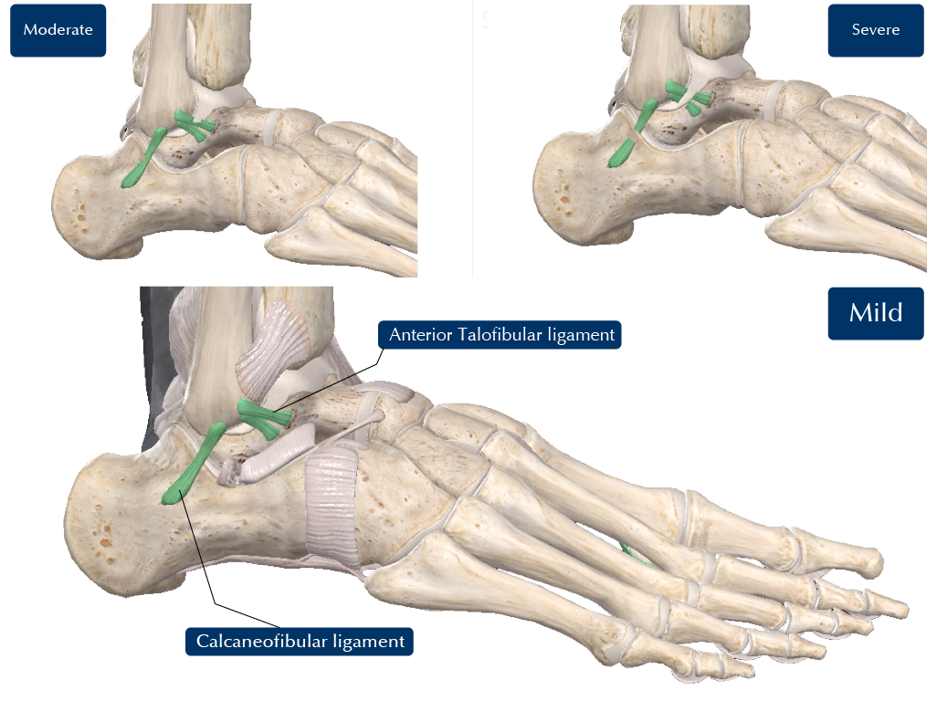 Mild Moderate and Severe Ankle sprain