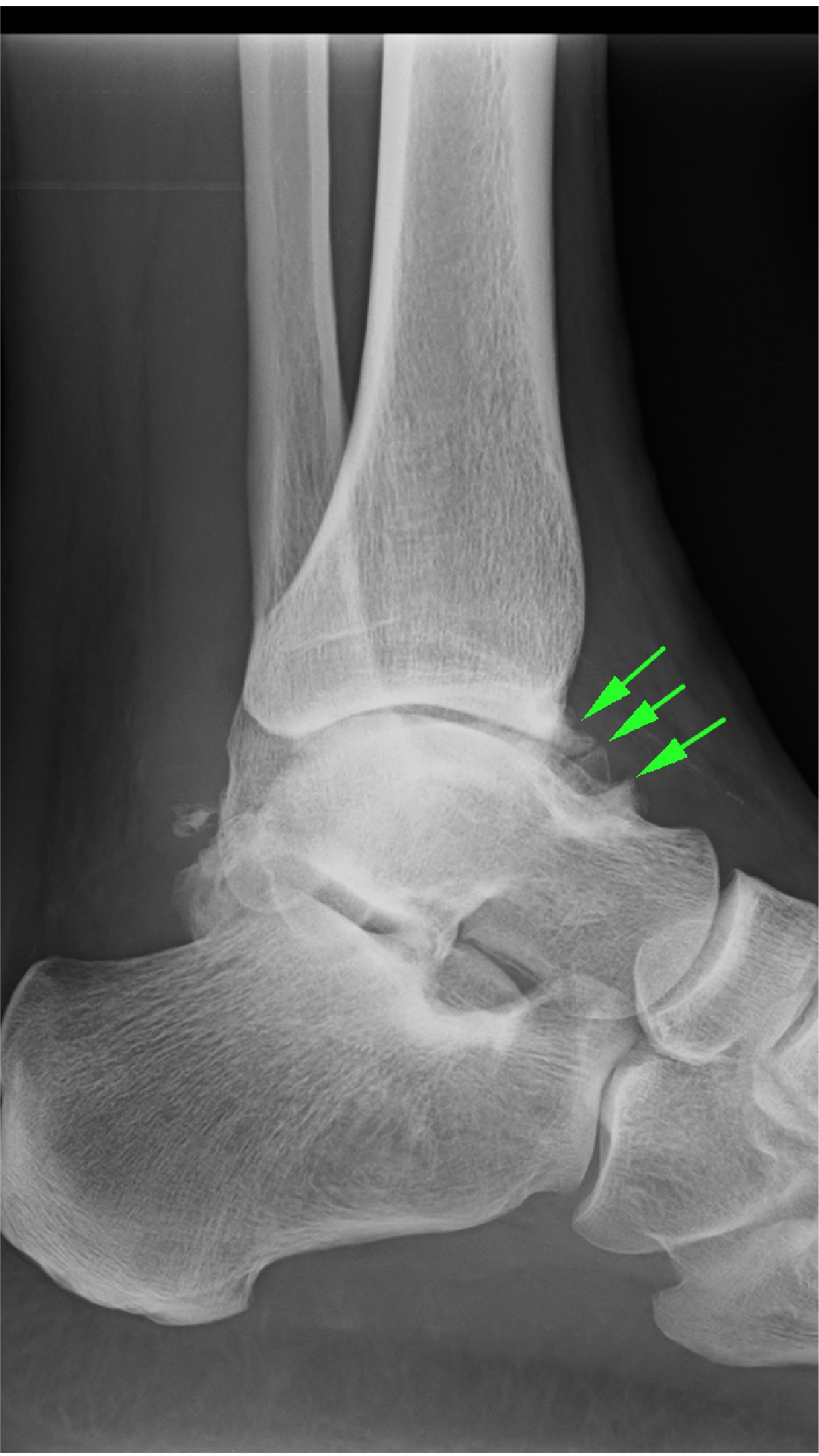 Bone spurt at the ankle joint